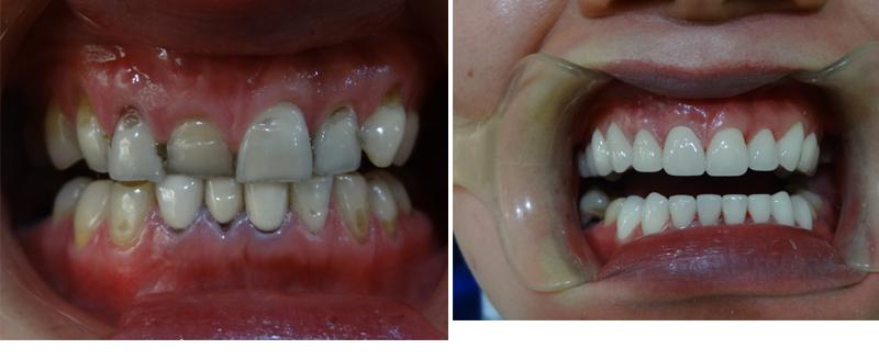 洗牙—勇敢露出你的笑容