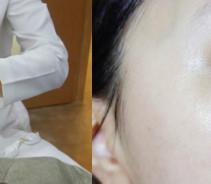 激光祛斑手术真的一次就有效诶,太惊喜了...
