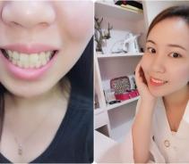 牙齿美白让我拥有自信笑容...