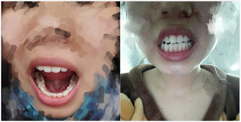 成都洗牙效果好不好?嗖嗖的~