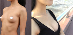 假体隆胸,小身材也可以有大视界