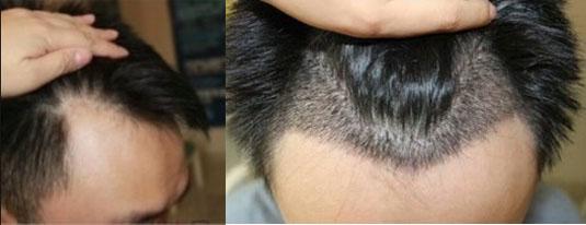 """种植发际线,改变要从""""头""""开始!效果还不错!"""