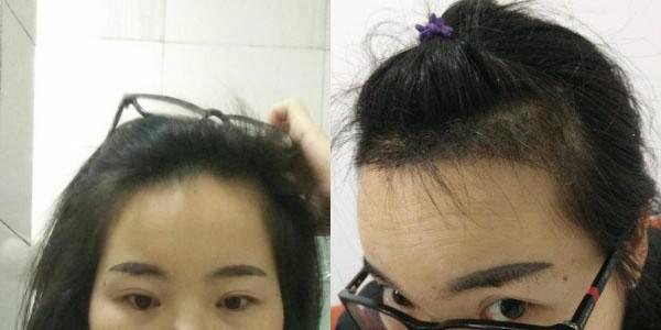去种植发际线了,等着头发快快长