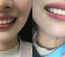 【牙齿冷光美白】牙齿白白,心情美美!...