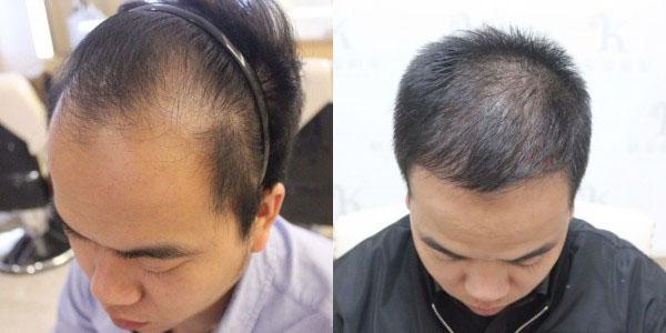植发改善形象,解决秃额头的困扰