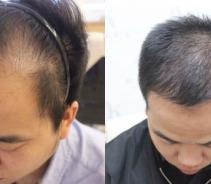 植发改善形象,解决秃额头的困扰...