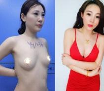 重庆自体脂肪隆胸案例...