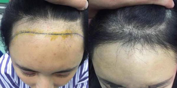 植发啦,改善一下高高的发际线