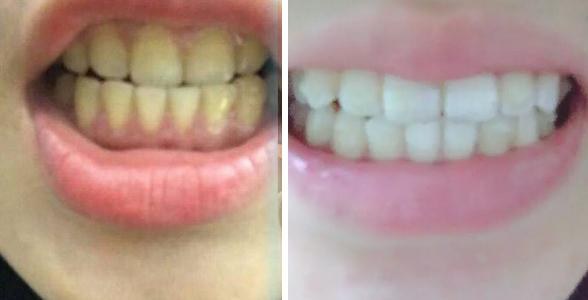 超声波洗牙,牙齿变干净变白啦