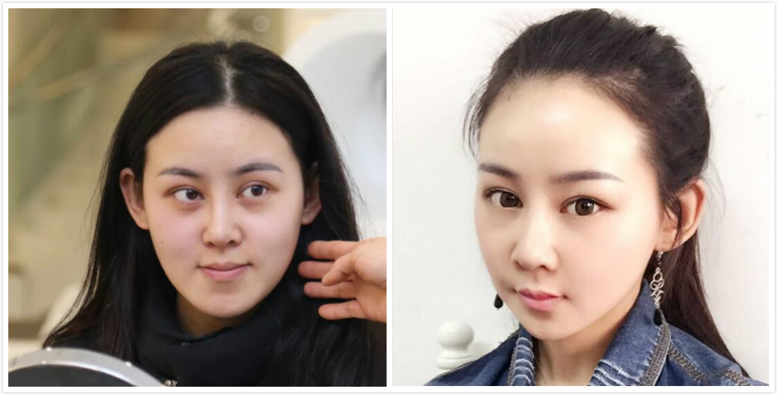 在上海时光做的反颌手术,解决了我面部凹陷的问题