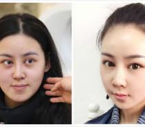 在上海时光做的反颌手术,解决了我面部凹陷的问题...
