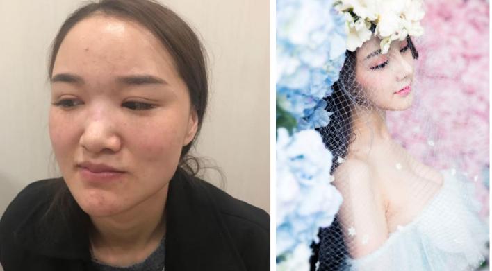 广州华美隆鼻失败修复好不好?真实案例分享。