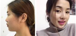 长沙雅美隆鼻效果怎么样,真实案例分享