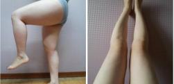 北京大腿吸脂术后的护理是怎样的呢?