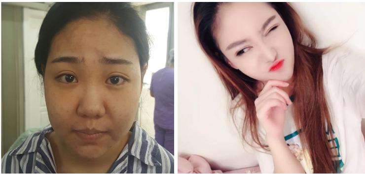 上海V脸整形哪里好,改变大吗?