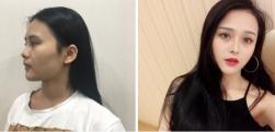 上海隆鼻真实案例分享,鼻子高挺秀丽了