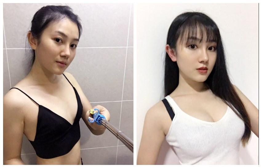 广州韩妃做假体隆胸怎么样?刘志刚技术怎么样呢?假体隆胸手感硬吗?
