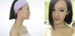 广州隆鼻效果怎么样,真实案例记载