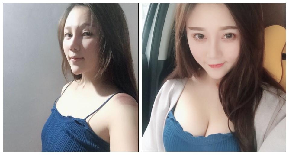 广州华美郑志芳做假体隆胸怎么样?假体隆胸手感会不会很硬?