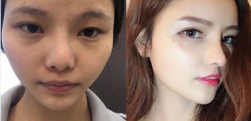上海东方丽人做鼻综合整形分享,白天鹅不是梦