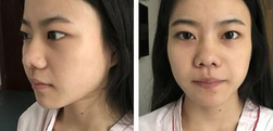 上海伊莱美李湘原做的鼻综合你们觉得怎么样?