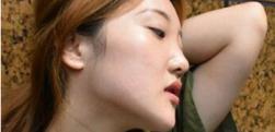 上海华美李健做下颌角整形多少钱?术后效果怎么样?