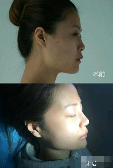 重庆美轮美奂做鼻综合多少钱?效果怎么样?