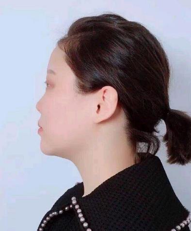 北京艺星做隆鼻修复多少钱?赵志伟做的怎么样?