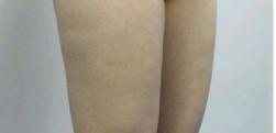 广州晨曦做大腿吸脂多少钱?会不会反弹呢?