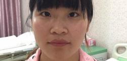 深圳博爱做鼻综合多少钱?效果怎么样?
