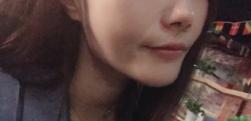 上海伊莱美做下颌角磨骨多少钱?手术风险大不大?