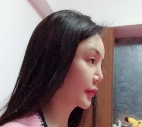 上海仁爱做鼻修复多少钱?技术怎么样?