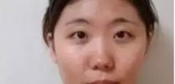 上海伊莱美李湘原做自体脂肪填充多少钱?效果怎么样?
