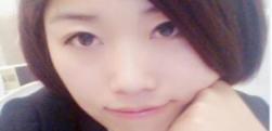 重庆爱思特做假体隆鼻多少钱?隆鼻价格大概是多少?