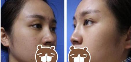 深圳颜美做隆鼻效果怎么样?隆鼻修复手术价格是多少钱?
