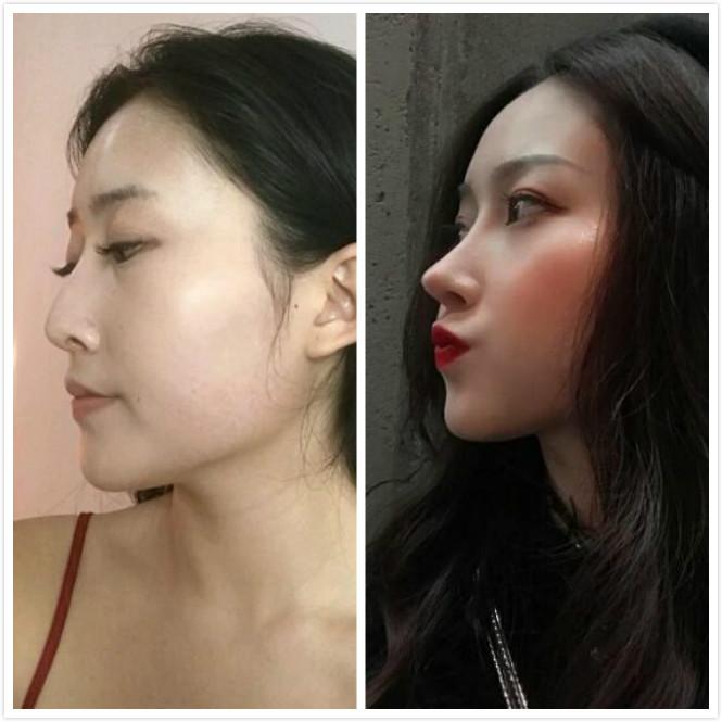 成都铜雀台杨建做的鼻综合手术,韩式小翘鼻,分享术后效果给大家