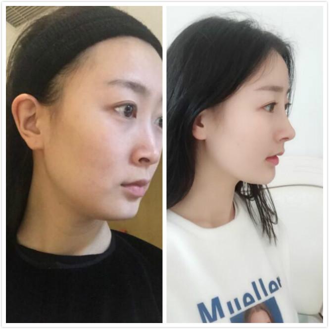 华美紫馨做的综合隆鼻手术,术后一个月的效果分享给大家