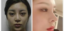成都西区医院肖凌医生做的鼻综合手术,术后效果分享