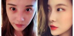 上海艺星做鼻综合手术的效果好不好?分享案例
