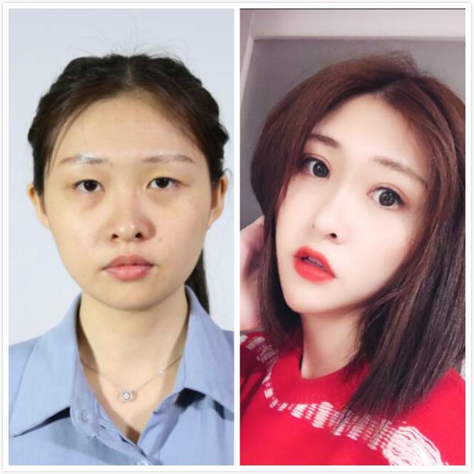 广州曙光做切开双眼皮手术,分享手术后的效果