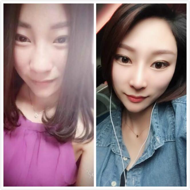 郑州做的肋软骨隆鼻手术,分享手术后的效果