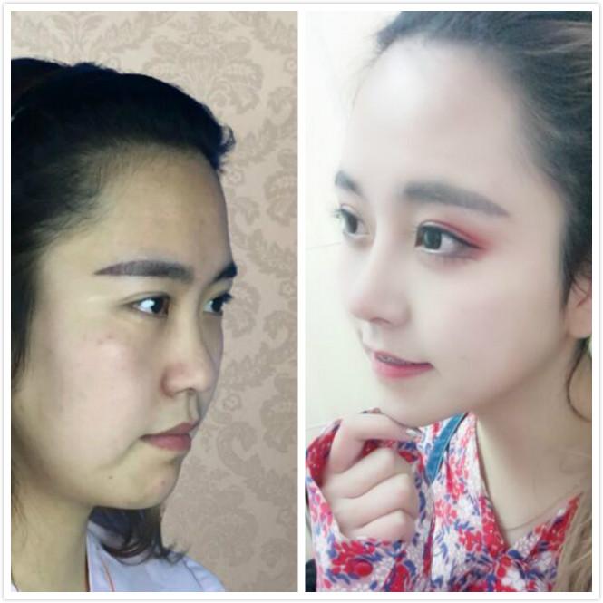 昆明艺星做的综合隆鼻手术,手术后的效果很不错啊