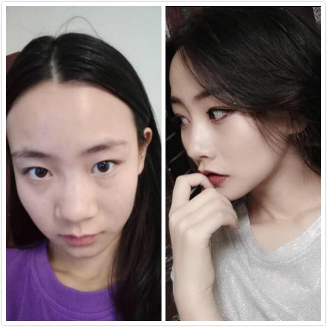 杭州美莱做综合隆鼻手术,手术后的效果很好