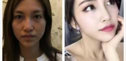 北京玉之光做膨体隆鼻手术效果怎么样?好不好?