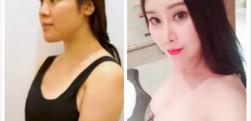 北京玉之光做的自体脂肪隆胸手术效果怎么样?好不好?