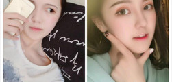成都铜雀台做的双眼皮手术和鼻综合手术,分享手术后的效果