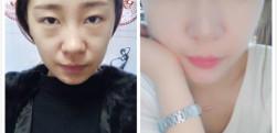 北京长虹做双眼皮手术的效果好不好?分享手术后的效果