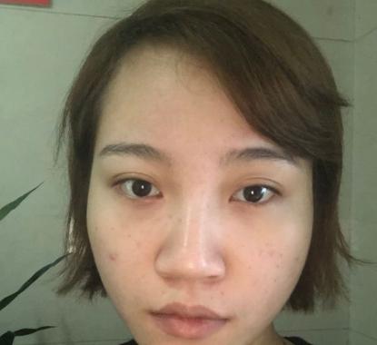上海时光做鼻综合多少钱?何晋龙做鼻综合技术怎么样?多少钱?