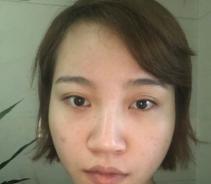 上海时光做鼻综合多少钱?何晋龙做鼻综合技术怎么样?多少钱?...