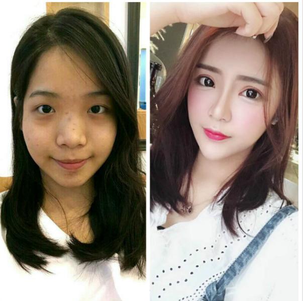 重庆美婵做鼻修复+双眼皮多少钱?吴一隆鼻修复技术怎么样?